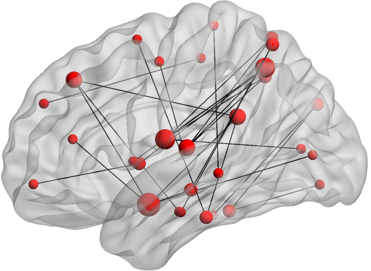 A picture of a brain showing connectivity between nodes.