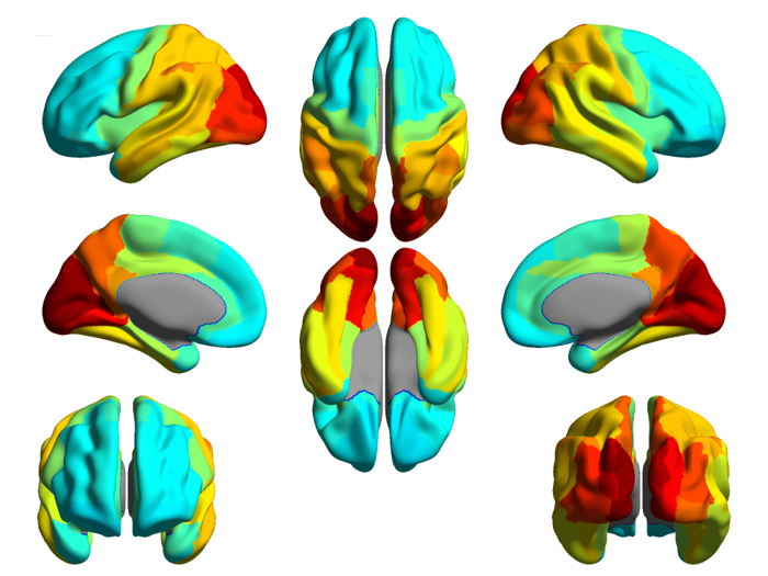 A picture of a brain from 8 perspectives, showing lateral, anterior, posterior, top, and bottom, showing various areas of neuronal activation.