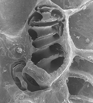 Scanning Electron Microscope image of the turns in a cochlea.