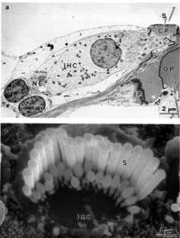 TEM and SEM of inner hair cell