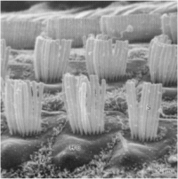 outer hair cells