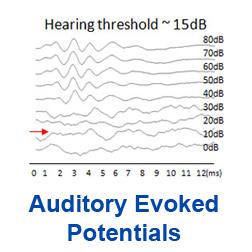 Auditory Braintem Response link