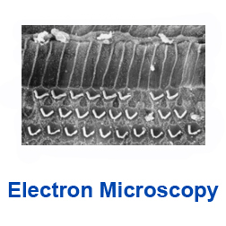 Link to the electron microscopy page
