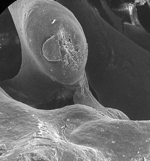 Stapedial muscle from the middle ear of a chinchilla