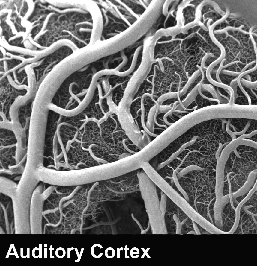 Corrosion cast of auditory cortex