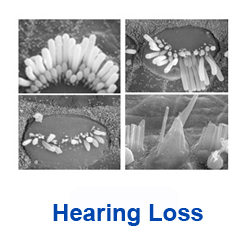 link to the hearing loss page