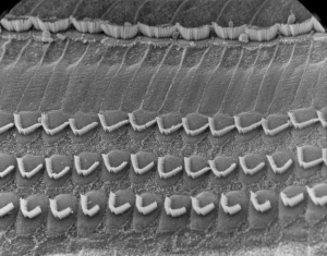 Inner and outer hair cells - Normal view