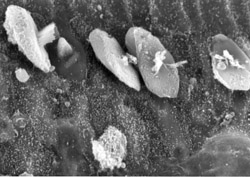 severe damage to inner haor cells