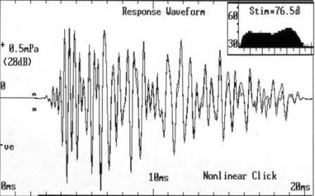Example of an otoacoustic waveform