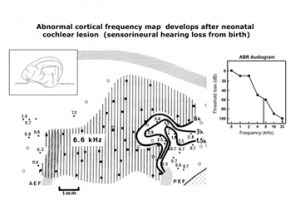 Cortical frequency map after cochlear lesion