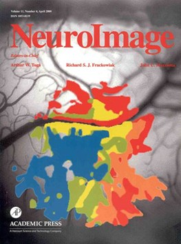 Cover of Neuroimage journal