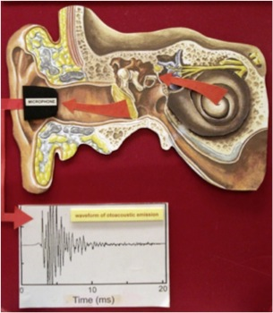 Image showing how otoacoustic emmisions are produced.