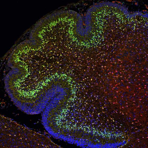 Cerebellum progenitor cells