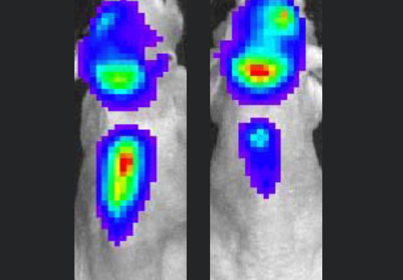 Brain tumour and metastasis
