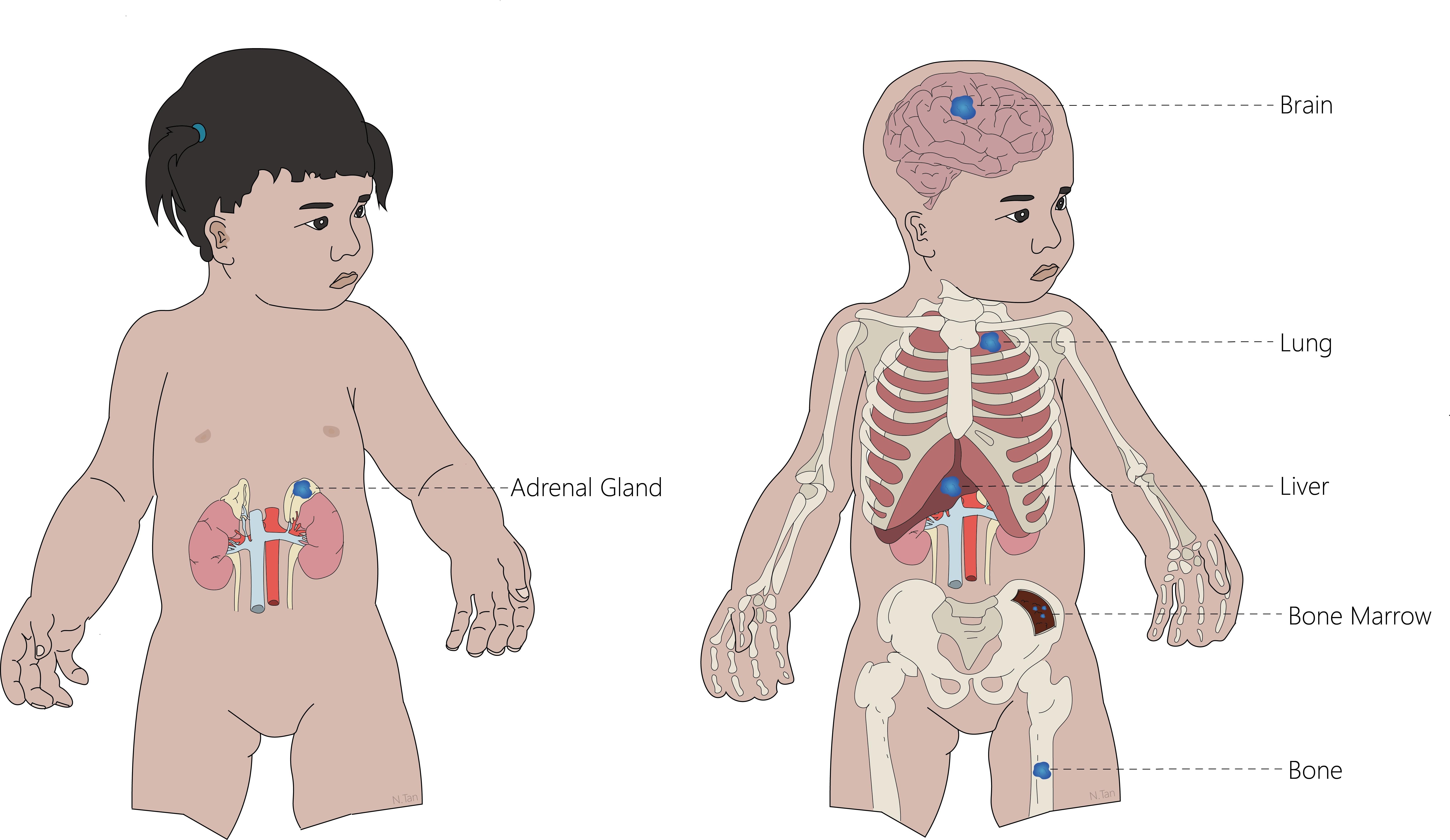 metastases of sites of neuroblastoma with tumours