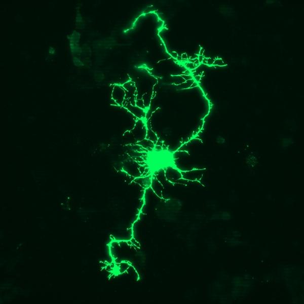 Cultured neuron