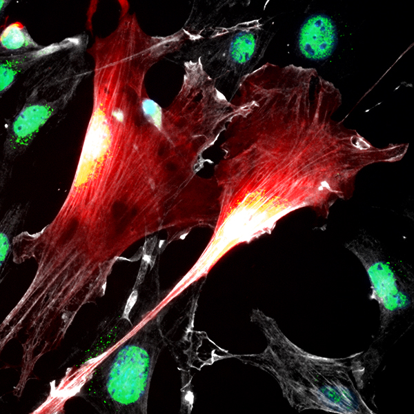 Cultured nerve-derived mesenchymal precursor cells, genetically tagged with the neural crest lineage tracer Wnt1Cre;TdTomato (red), and immunostained for the mesenchymal markers alpha smooth muscle actin (white) and Sox9 (green)