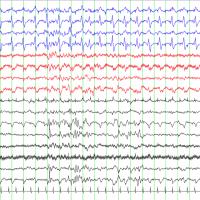Photo of seizure on cEEG