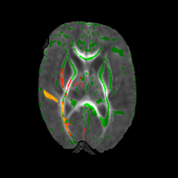Photo of brain tracts
