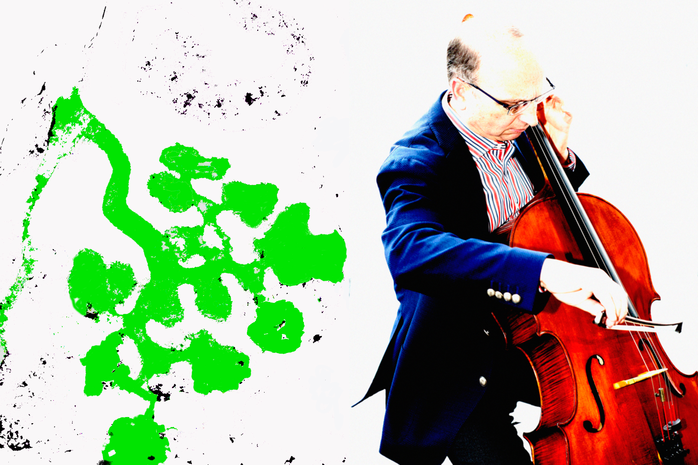 Rosenblum lab landing page image with Dr. Rosenblum playing Cello and a section of kidney explant