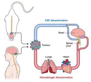 Blood Dissemination of Medulloblastoma