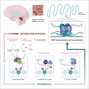 Ependymoma is driven by abnormal cellular metabolism